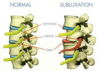 Chiropractic Adjustmen